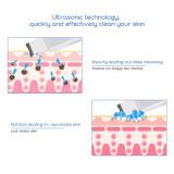 CkeyiN Ultrasonic Ion Skin Scrubber Facial Skin Ultrasonic Scrubber Cleaner Blackhead Removal Face Skin Peeling Extractor Skin Rejuvenation Beauty Device