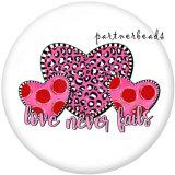 20MM  Love  Print  pink kiss glass  snaps buttons