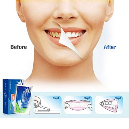 14Pcs 3D Teeth Whitening Pastes Remove Yellow and Remove Stains Fresh Oral Cleansing