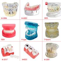 Dental Implant Teeth Study Model Typodont Standard Retainer Adult Demonstration