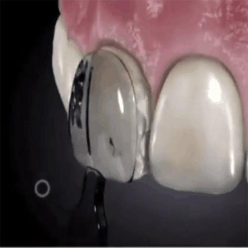 30Pcs/Kit Dental Mould For Dental Carving Patch Anterior Teeth Partner Composite Resin Light Cure Filling Anterior Front Teeth