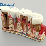 Dental Demonstration Standard Typodont Teeth Model Dental Study Teach Model Demonstration Clear Model with Teaching and Science
