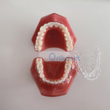 Dental Model Invisible Orthodontics Retainer Tooth Model with Metal Bracket Arch Wires Ligature Ties Teaching Studying Dentistry Tool