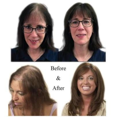 Magic Hair Topper Clip