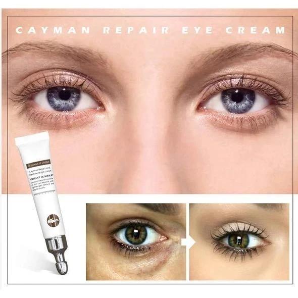 VIBRANT GLAMOUR™ Magic Eye Cream - 28 seconds to remove eye bags/dark circles/eye wrinkles
