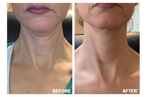 MEEDXI Advanced Neck Firming Cream