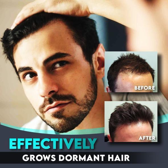 AlphaM Hair Regrowth