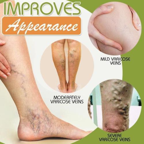 Spider Leg Repair Cream