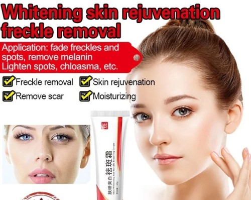 Fuyan whitening nicotinamide freckle lotion, freckle skin care freckle cream