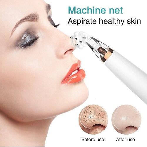 LCD Electric Blackhead Remover For Face Pore Acne Black Dots Vacuum Suction Remove Machine Diamond Beauty Facial Skin Care Tool
