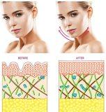 Microcurrent Facial Massager Roller- Mini Facial Toning Device-Galvanic Face Lift Machine