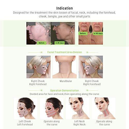 RF Radio Frequency Facial And Body Skin Tightening Machine - Professional Home RF Lifting Skin Care Anti Aging Device - Salon Effects