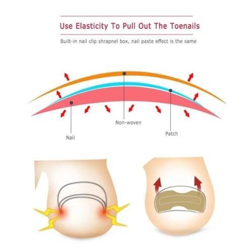 Glue Free Toenail Patch