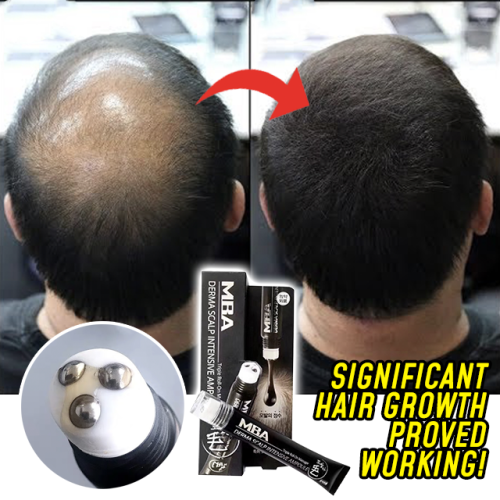 Roll-on Hair Growth Serum【BUY 3 FREE SHIPPING】