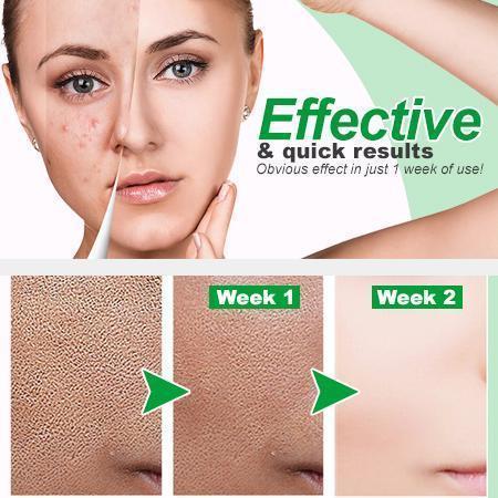 Zero Pore Instant Perfection Serum