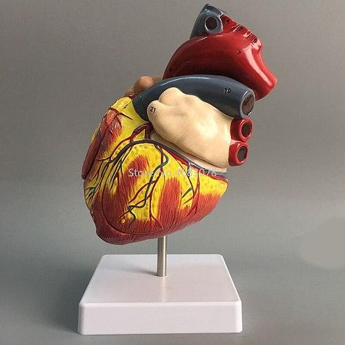 Human Heart Anatomical Anatomy Teaching Model Viscera Medical Organ Model Emulational + Stand Medical Science Teaching Supplies