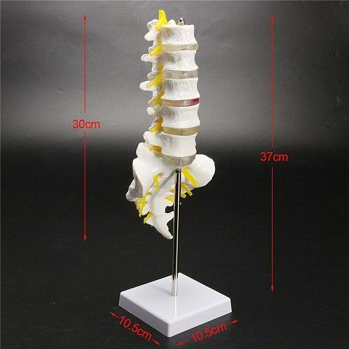 30cm Life Size Chiropractic Human Anatomical Lumbar Vertebral Spine Anatomy Model School Educational Medical Teaching Model Tool