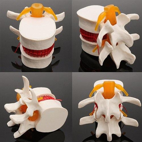 Human anatomy skeleton Spine Lumbar Disc Herniation Teaching Model brain skull traumatic pistol school supplies medical instrume