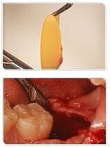 PRF PRP Centrifuge, Platelet rich Fibrin centrifuge, Blood PRF for detistry, Maxillofacial surgery, orthopedics, plastic surgery