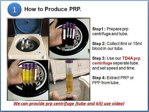 2020 beauty low speed PRP centrifuge laboratory prp centrifuge use 8ml 10ml 12ml 15ml glass tube