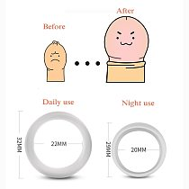 2PCS Silicone Male Foreskin Corrector Resistance Ring Delay Ejaculation Penis Rings Sex Toys for Men Daily/Night Cock Ring