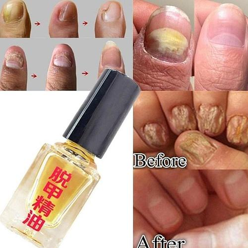 5ml Fungal Nail Treatment Serum Bright Nail Repair Effective Fungus Removal Essence oil Anti Infection Foot Caring Onychomycosis