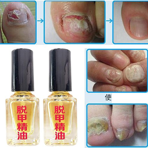 3 Days Effect Fungus Removal Essence Liquid Fungal Nail Treatment Bright Nail Repair Anti Infection Foot Caring Plasters 5ml
