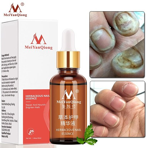 MeiYanQiong Fungal Nail Treatment Feet Care Essence Nail Foot Whitening Toe Nail Fungus Removal Gel Anti Infection Paronychia