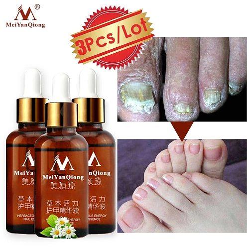 3PCS Fungus Nail Treatment Feet From the Fungus Nail Repair Cream Nail Care Foot Whitening Toe Gel Anti Infection