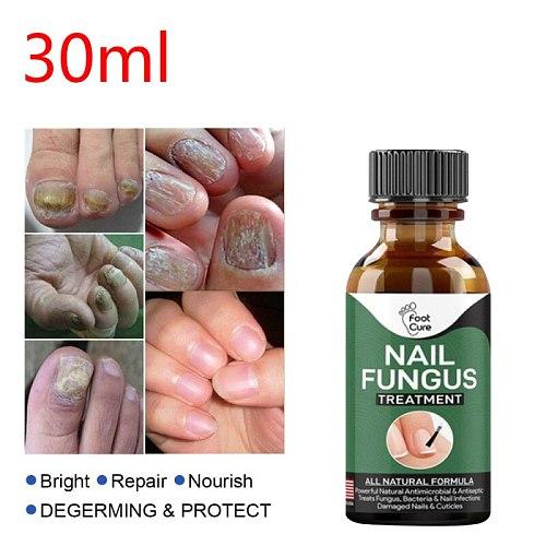 Fast Nail Fungal Treatments Nail Repair Essences Serum Care Treatments Foot Nail Fungus Removal Gel Paronychia Onychomycosis