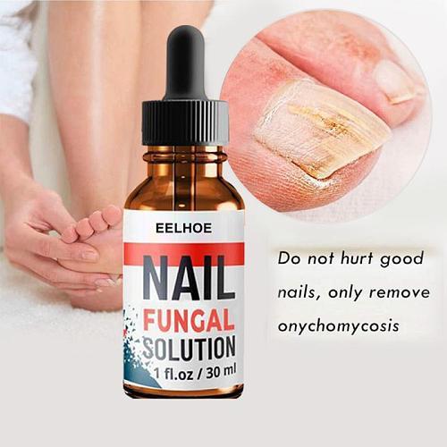 30/20/10ml Foot Anti-fungal To Remove Onychomycosis Repair Treatment Liquid Healthy Nail Care Repair Liquid TSLM2