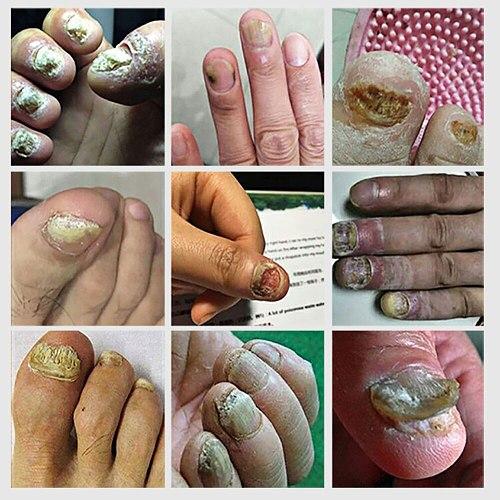 LANBENA Fungal Nail Repair Essence Serum Anti Infection Paronychia Onychomycosis Treatment Care Foot Nail Fungus Removal Gel
