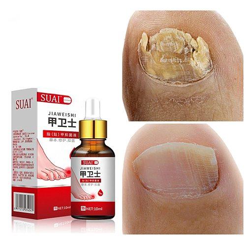 Nail Fungal Treatment Feet Care Essence Nail Foot Whitening Toe Nail Fungus Removal Gel Anti Infection Paronychia Onychomycosis