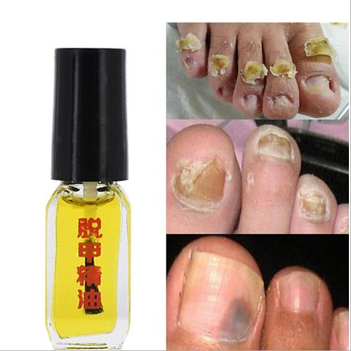 3 Days Effect Really work Nail Treatment Removal of onychomycosis Paronychia Anti oil Fungal Nail Infection Toe Nail Fungus oil