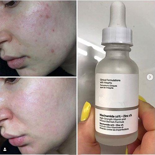 Niacinamide 10% + Zinc 1% Ordinary 30ml High Mineral Essence Regulates Sebum and Minimizes Pores Makeup Primer Facial Serums