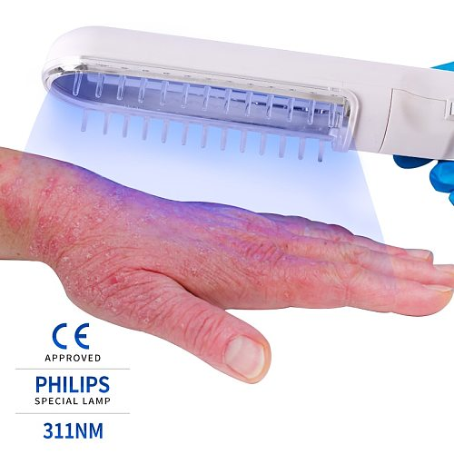 Narrow Band Psoriasis Home phototherapy devices Handheld Lamp For Vitiligo Eczema UVB 311NM Narrowband Ultraviolet Vitiligo Lamp