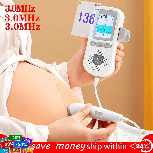 3.0Mhz Baby Doppler Fetal Upgraded Pregnant Infant Heart Rate Monitor Ultrasound Detection Digital Curve Mode No Radiation
