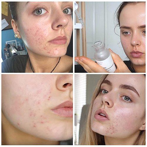 Ordinary Face Makeup Peeling Solution 30ml AHA 30% + BHA 2%  Acne Removing Serum Repair Hyaluronic Acid Face Skin Care 30ml