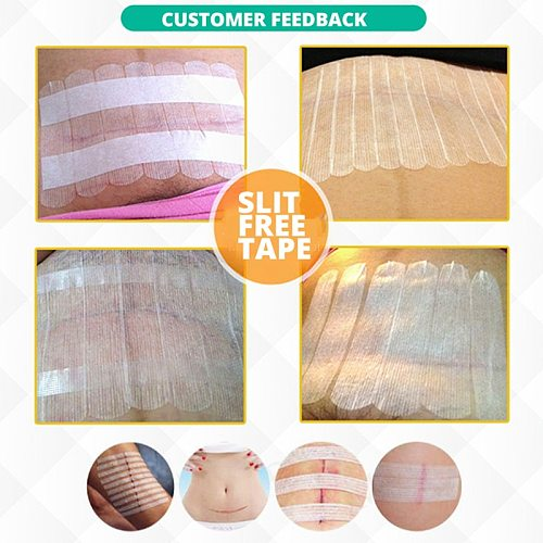 Sterile First Aid Travel Wound Skin Closures Medical Surgical Adhesive Steri Strip Scar Away Acne Scar Marks Remover Skin Repair