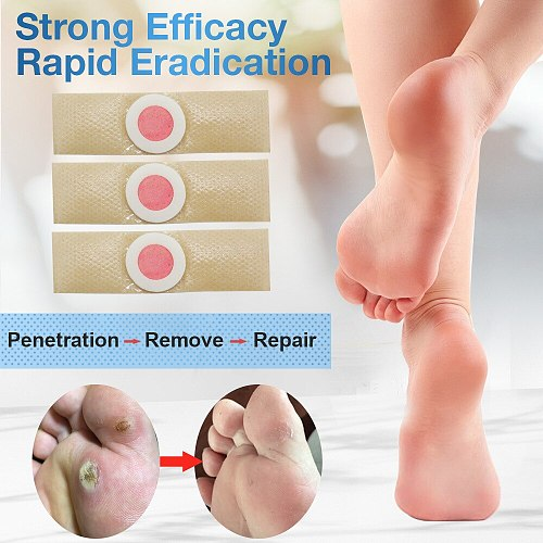 24pcs Medical Plasters Foot Corn Removal Warts Thorn Patch Curative Patches Stickers Calluses Callosity Detox Foot Toe Patches