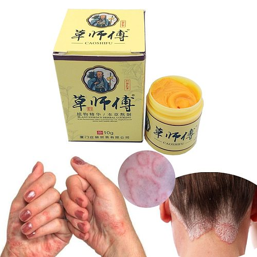 10PCS Profesprofessional Cure Psoriasis Ointment Medicine Ingredient Security For All Kinds Of Skin Problems 29A psoriasis cream