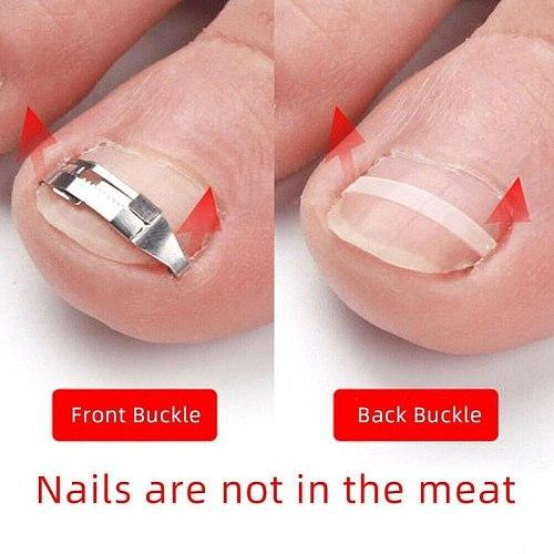2pcs Ingrown Toe Nail Fixer Embed Toenail Correction Lifter Pedicure Tool Foot Care Pedicure Recover Ingrown Nail Correction