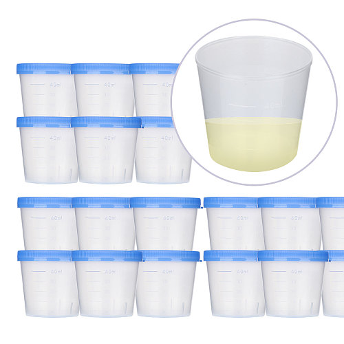 50pcs 40ml Urine Cup Sterile Urine Cups Specimen Collection Cups with Lids Urine Container Specimen Containers Urine Testing