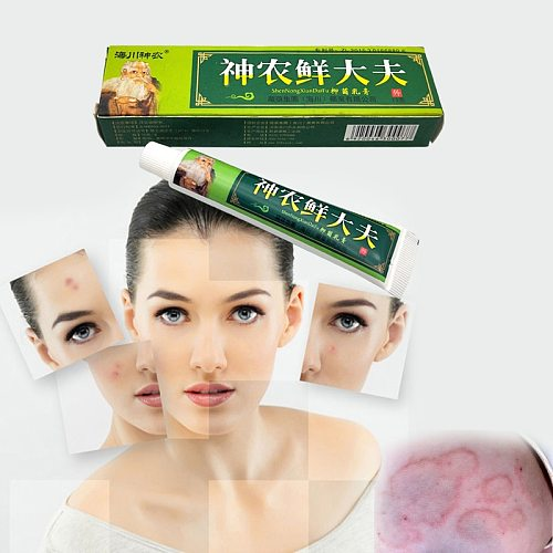 15g Natural Chinese Medicine Herbal Anti Bacteria Cream Psoriasis Eczema Ointment Treatment High Quality Herbal Cream
