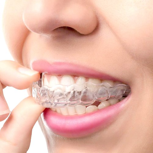 Silicone Teeth Trays for Teeth Whitening Transparent 1Pc/2Pcs Dental Tray Mouth Teeth Whitening Trays Mouth Guard Tooth Tool