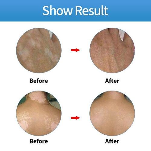 20g Chinese Medical Vitiligo Ointment Pigment Melanin Promoting Liniment Skin White Spot Leukoplakia Disease Treatment