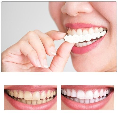 False Teeth Veneer Silicone Top & Bottom Teeth Veneers Temporary Fake Teeth Cosmetic Teeth Upper Lower Denture Fake Tooth Cover