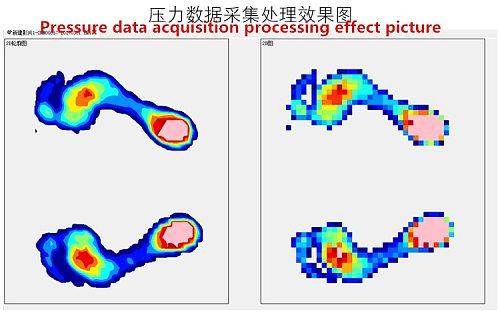 Fast Free Ship Pressure distribution detection sensor array vola/planta pedis cushion system for Flexiforce fsr Pressure Sensor