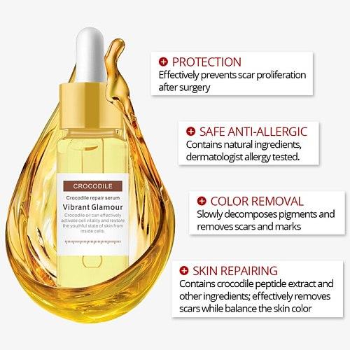 VIBRANT GLAMOUR Crocodile Repair Scar Face Serum Oil Acne Scar Whitening Anti-Aging Face Skin Care Repair Serum TSLM1