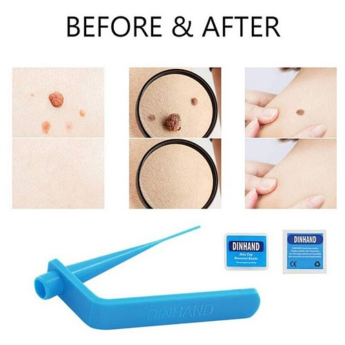 Home Use Medical Skin Tag Non Toxic Face Care Mole Wart Tool Skin Mole Wart Remover skin care tools set With Cleansing Swabs